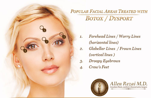 botox-diagram-web
