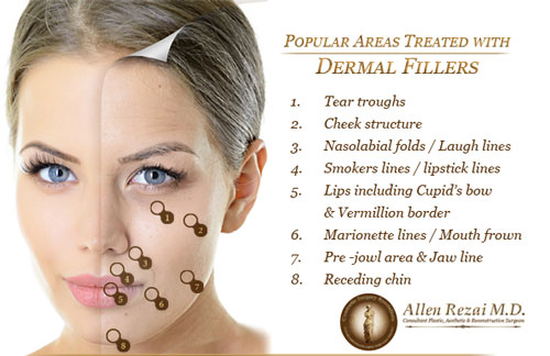 dermal-filler-diagram-web
